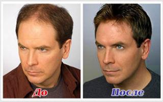 Вosley против выпадения волос. отзывы и рекомендации