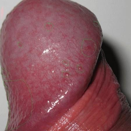Белый налет на головке полового члена и крайней плоти