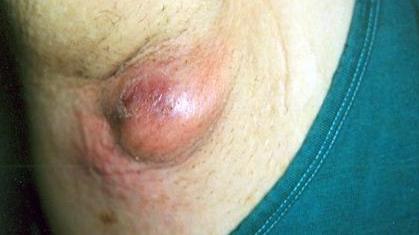 Шишка или опухоль под мышкой