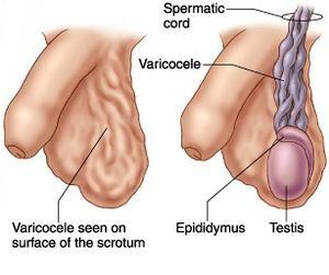 Причины почему болит левое яичко у мужчины
