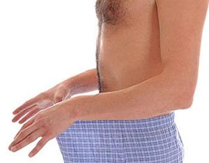 Кандидозы у мужчин: симптомы