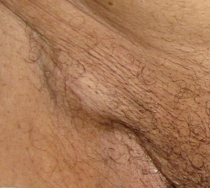 Шишка в паху у мужчин справа или слева