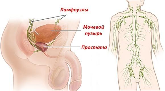 Лимфоузлы в паху у мужчин: воспаление паховых лимфоузлов у мужчин
