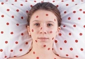 Красные точки на головке полового члена