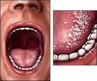 Мужская молочница: симптомы и лечение