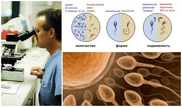 Мар тест (mar тест или mar test) - расшифровка и спермограмма