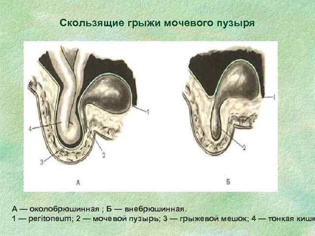 Мочевой пузырь: болезни симптомы