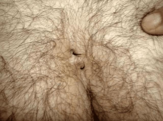 Шишка на копчике: воспаление копчика у мужчин
