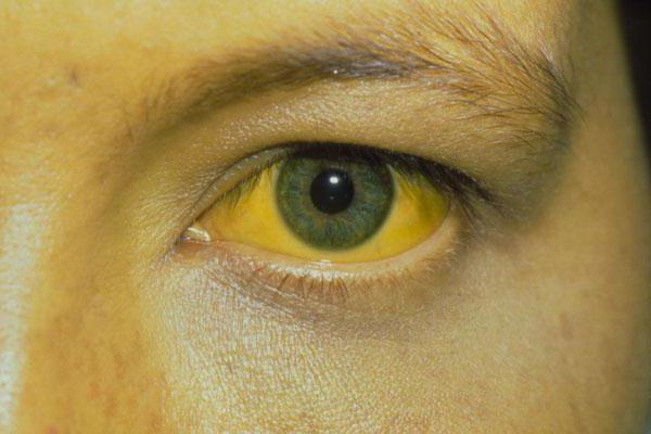 Симптомы и признаки гепатита С у мужчин