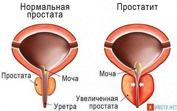 Острая и резкая (режущая) боль внизу живота у мужчин