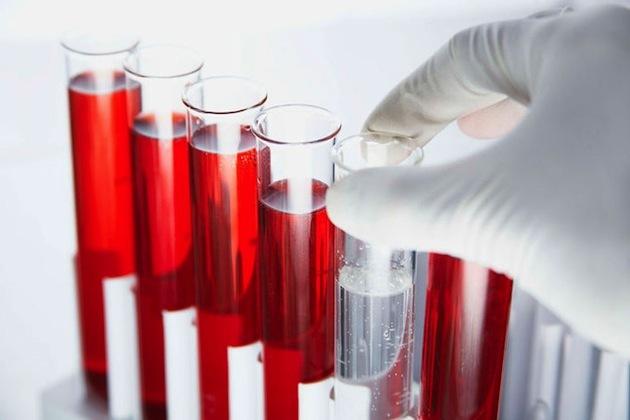 РОЭ в анализе крови: что это и норма для мужчин