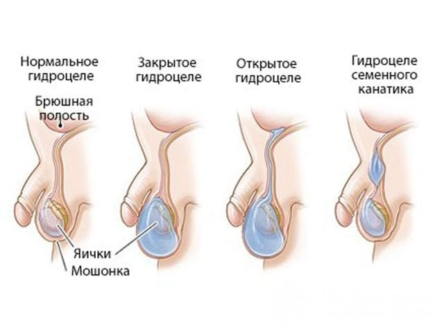 Водянка - что это за болезнь и признаки водянки