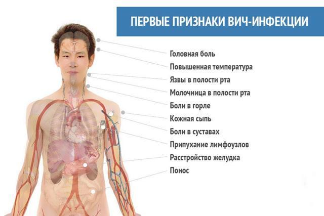 Симптомы ВИЧ у мужчин на ранних стадиях