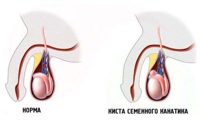 Боль в яичках у мужчин: причины мужских болезней яичек
