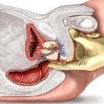 ДГПЖ предстательной железы - что это такое?