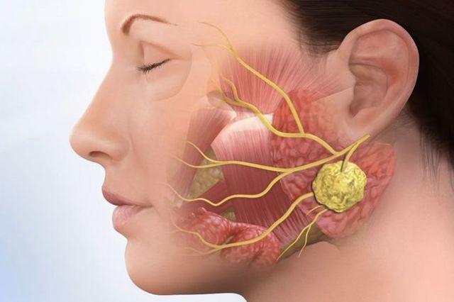 Болезнь свинка или паротит: симптомы у взрослых