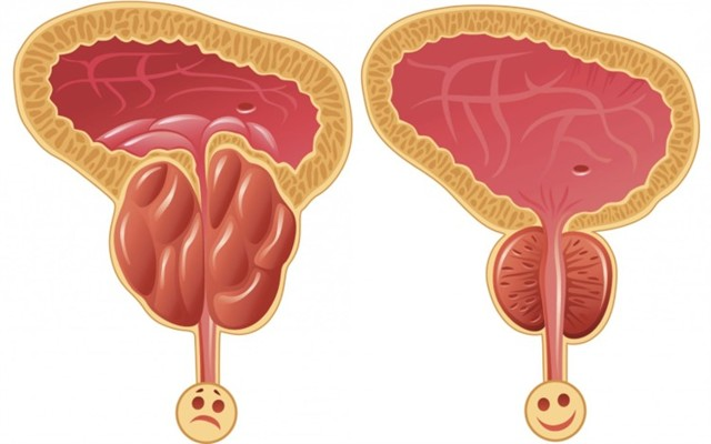 Боль и резь в мочеиспускательном канале у мужчин