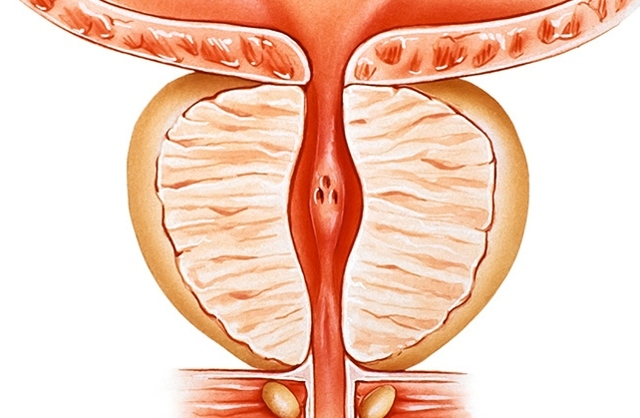 Как вылечить простатита у мужчин