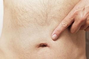 Пупковая грыжа у мужчин - лечение без операции