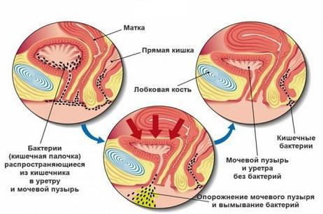 СОЭ (скорость оседания эритроцитов): норма у мужчин