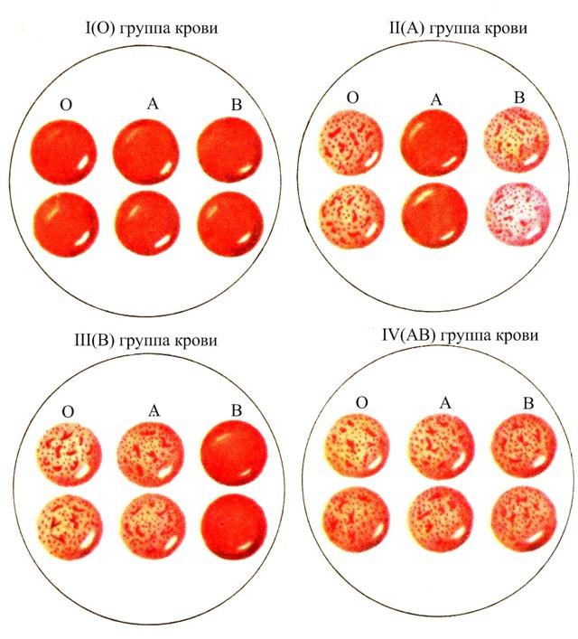 4 группа крови резус отрицательный: характеристика и особенности