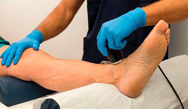 В чём проявляется повышение гемоглобина у мужчин и что следует знать о недуге