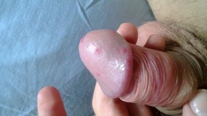 Белые пупырышки на головке члена у мужчин