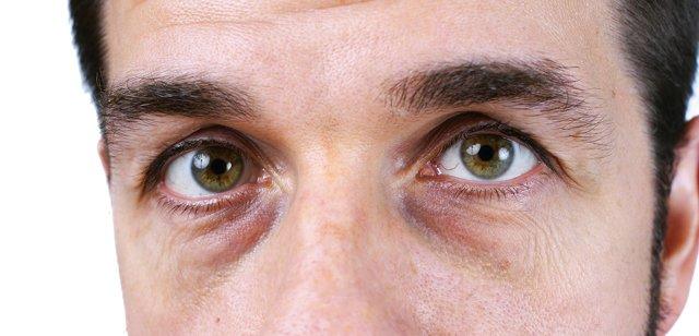 Темные круги под глазами и вокруг глаз: причины у мужчин