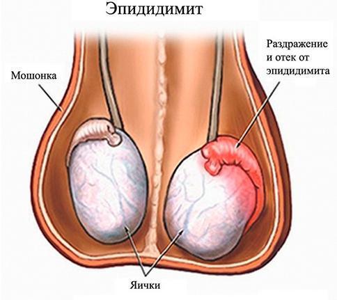Агрегация сперматозоидов - это их соединение