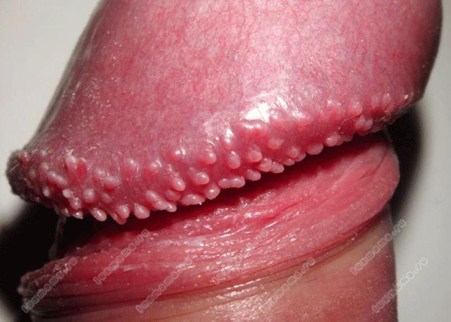 Болячка под языком, язвочки на уздечке: причины, лечение народными методами