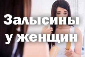 Залысины у женщин: причины и лечение
