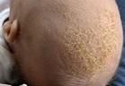 Почему у ребенка выпадают волосы: не растут у грудничка на голове волоски