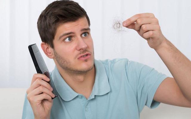 Наследственная алопеция у мужчин или как с этим бороться?