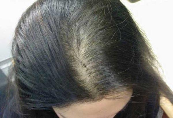 Методы диагностики в трихологии - трихограма, фототрихограмма, спектральный анализ волос