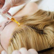 Физиотерапия при лечении алопеции, эффективность и виды.