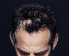 Загуститель fully(фулли) для волос: отзывы и рекомендации по применению, где купить