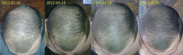 Массаж головы для роста волос, от выпадения, отзывы, видео