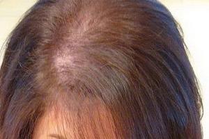 Гипотиреоз и выпадение волос: причины возникновения и лечение