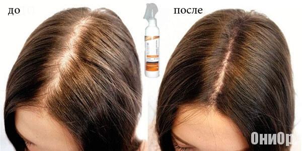 Спрей для волос liquid crystal system - Алопеция: выпадение волос, лечение народными средствами