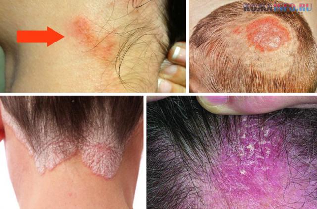 Заболевания и болезни кожи головы: лечение и воспаление грибковых болячек