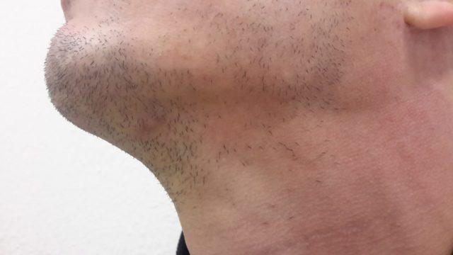 Залысины у мужчин на лбу: причины появления и методы избавления от облысения