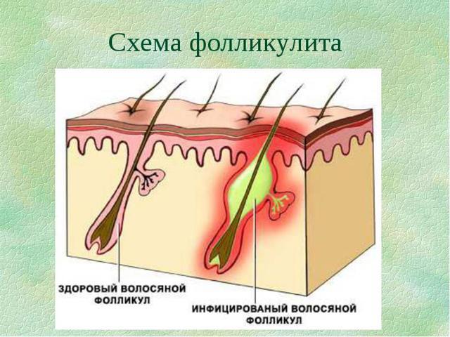 Воспаление волосяного фолликула: что такое фолликул