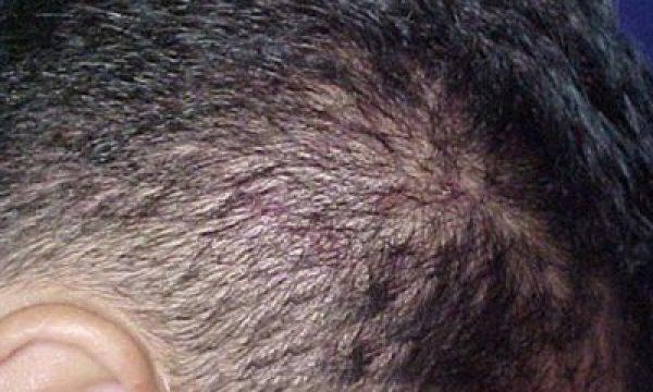 Алопеция себорейная: описание заболевания и его лечение