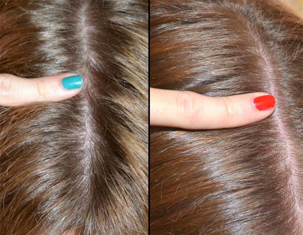 Перфектил для волос: витамины, состав и действие, отзывы покупателей