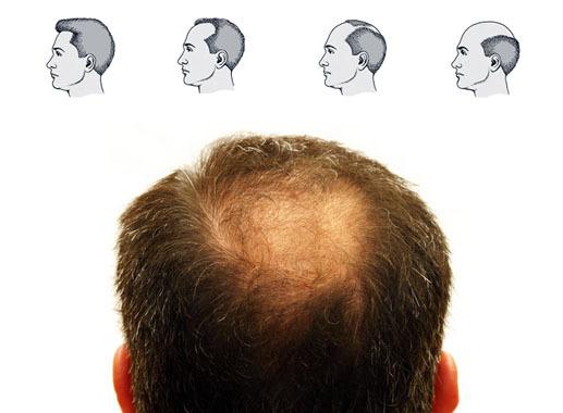 Косметология в лечении алопеции или чем вам поможет косметолог?
