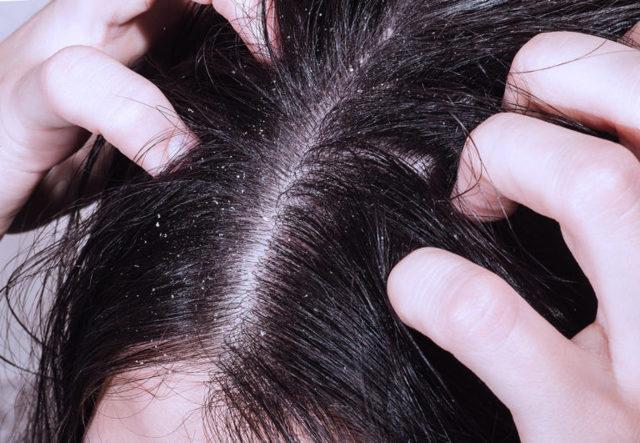 Шампуни народные средства для кожи головы против грибка