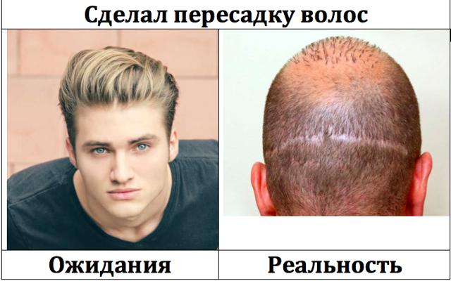 Пересадка волос отзывы, применение, ход операции, последствия