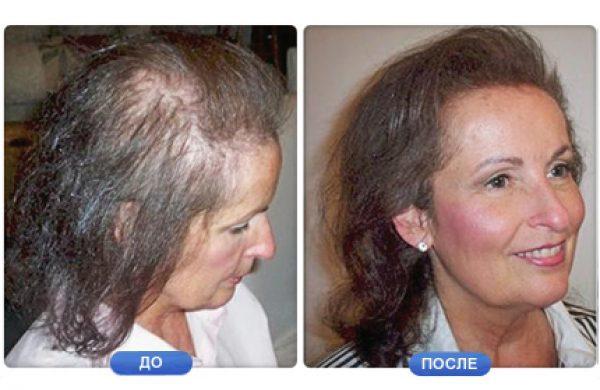 Рубцовая алопеция лечение, профилактика - alopecya.ru