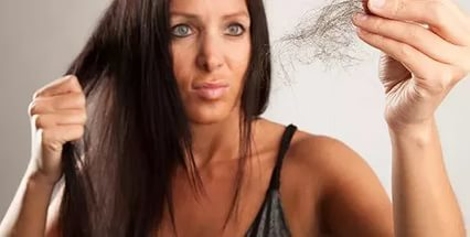 Гормональная алопеция у женщин