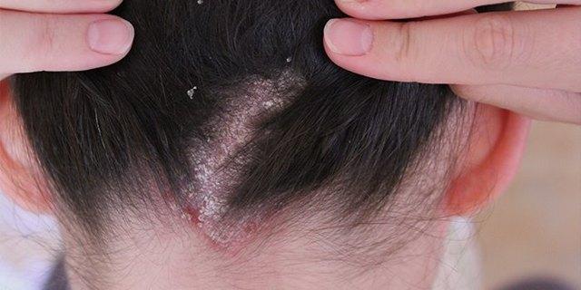 Шелушение кожи головы: что делать?